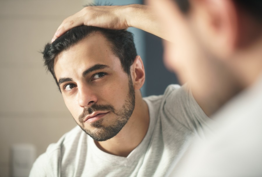 man worried for alopecia checking hair for loss 324FTZN